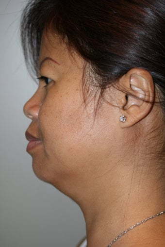 SmartLipo to the neck before 526866