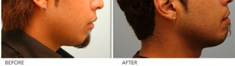 Upper and Lower Lip Reduction 333433