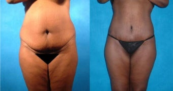 Lower Body Lift with Liposuction and Fat Injections before 101864