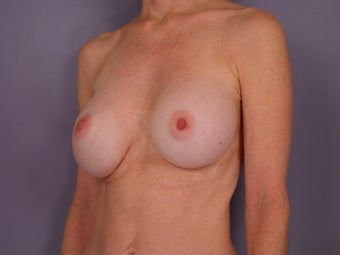Breast Revision before 307212