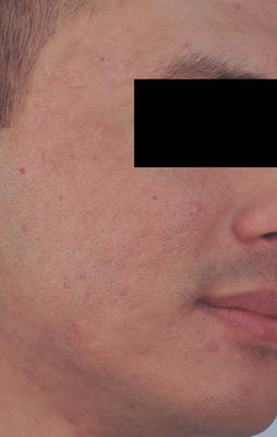 Laser Resurfacing for Acne Scars after 82980