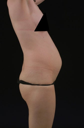 Liposuction before 513558