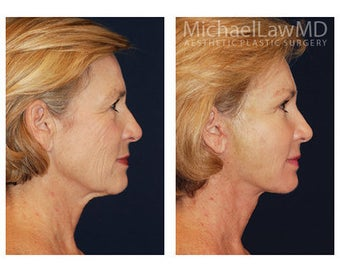 Lower Face and Neck Lift after 355087