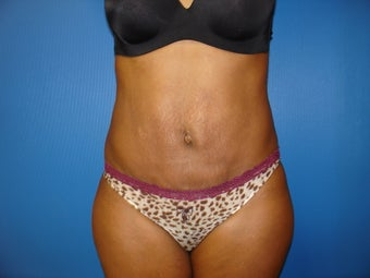 Abdominoplasty (Tummy Tuck) after 221544