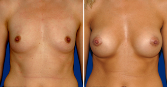 Breast Implants before 494498