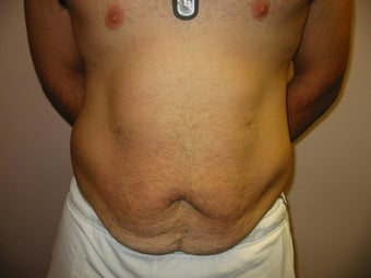 Abdominoplasty on 24 year old man before 335195