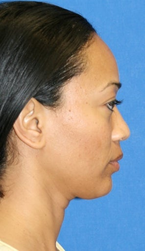 rhinoplasty before 264040