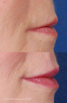 Restylane Lip Injection before 222100