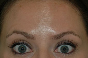 Botox injected in between the eyebrows and into the forehead 577107
