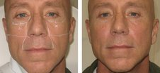 Non-surgical Face Lift with Radiesse before 69355