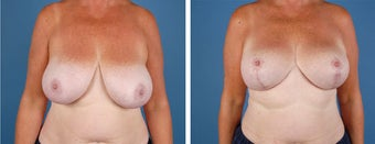 Breast Lift before 355777