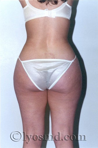 Liposuction before 225378