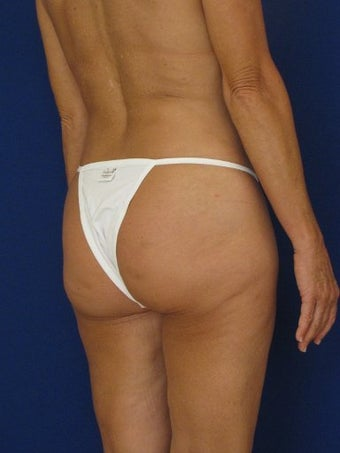 Vaser Hi Def Liposuction of abdomen, thighs, flanks and back with fat injections to buttocks 422734
