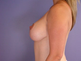 Breast Lift  after 311056