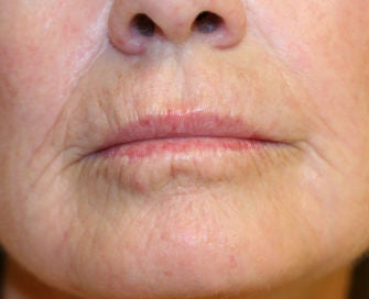 Lip lift, corner of lip lift, and laser treatment of wrinkles around lips before 299916