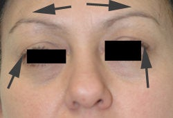 Botox Brow Lift after 179154