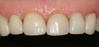 Porcelain Veneers and Crowns before 370188