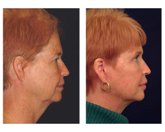 Lower Face & Neck Lift after 349225