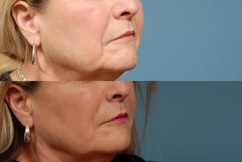 Sculptra after 409299