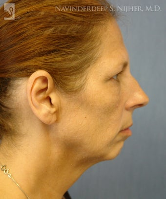 Chin Implant before 502574