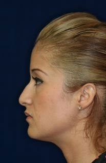 Rhinoplasty and Septoplasty before 223643