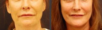 Facelift before 406749