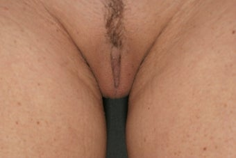 Labiaplasty  after 333193