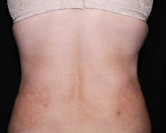 Laser Liposuction after 362280