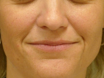 Treatment of prominent nasolabial folds with dermal filler before 377061