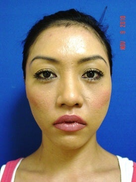 Chin Augmentation/Rhinoplasty before 393380
