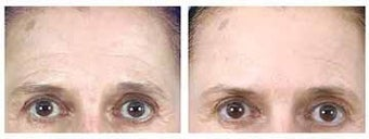 Botox and Browlift before 6321