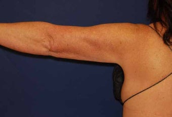 Liposuction Upper Arm after 513399