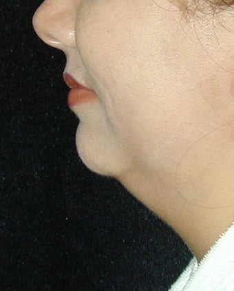 Chin Implant Surgery before 101325