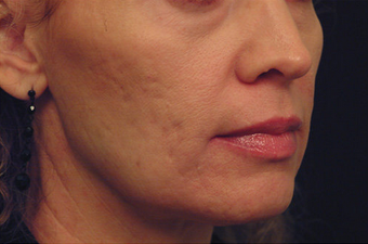 Yag Laser Skin Tightening  622085