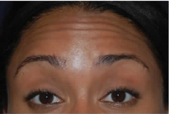 Botox to Treat Horizontal Forehead Lines before 53757