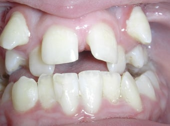 Damon Braces before 378589