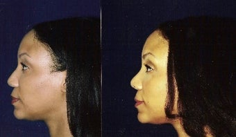 Rhinoplasty and Septoplasty before 241674