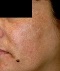 Melasma Treatment  before 120084