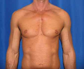 Pec Implants  before 420119