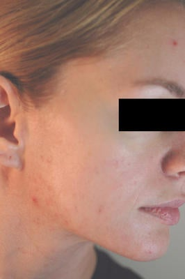 Laser Acne Treatment after 82977