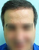 FUE – BHT by SFET Using Only Nape, Head and Body Hair after 196036