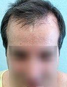 FUE – BHT by SFET Using Only Nape, Head and Body Hair before 196036