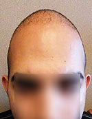 FUE – BHT Using Head, Beard and Body Hair