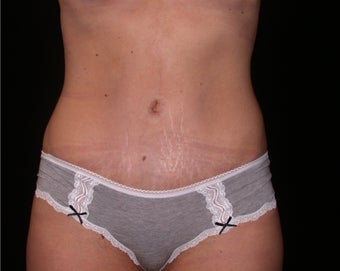 Tummy tuck after 197303