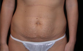 Tummy tuck before 197303