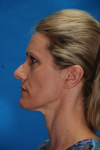 Revision rhinoplasty before 198135