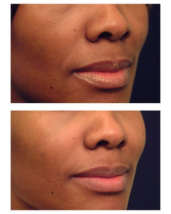 Injectable Filler before 301195