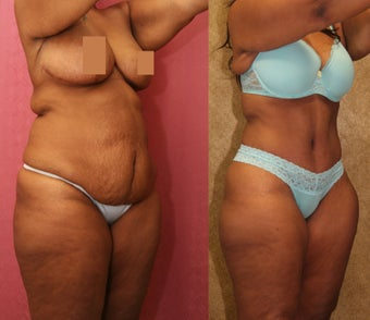 tummy tuck after 304705