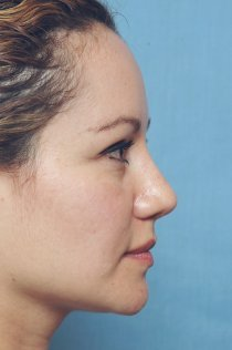 Revision Rhinoplasty after 581092