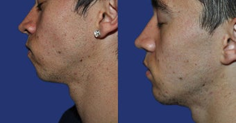 Chin Augmentation before 633487